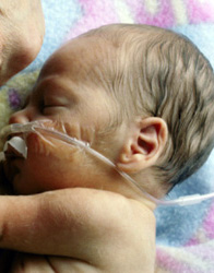 A Baby's Lungs are Able to Breath Air, However if Born Now Would Need Assistance